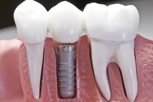 Протезирование зубов в иркутске цены отзывы